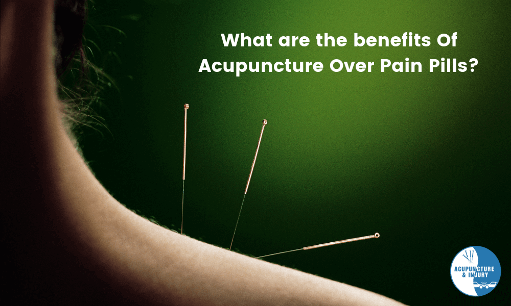 What Are The Benefits Of Acupuncture Over Pain Pills