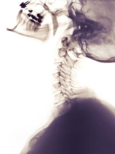 cervical spine xray side view